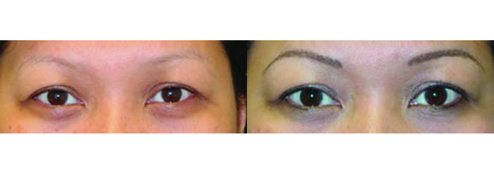 eyeliner tattoo, permanent eyeliner, eyelash enhancement