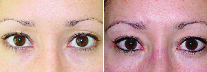 permanent eyeliner in dallas, eyeliner tattoo in southlake