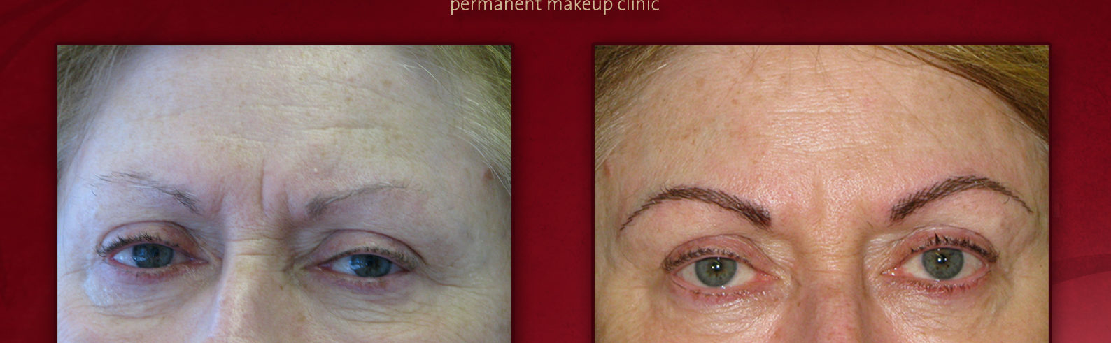 Dallas Fort Worth Mpi Permanent Makeup Microblading Clinic