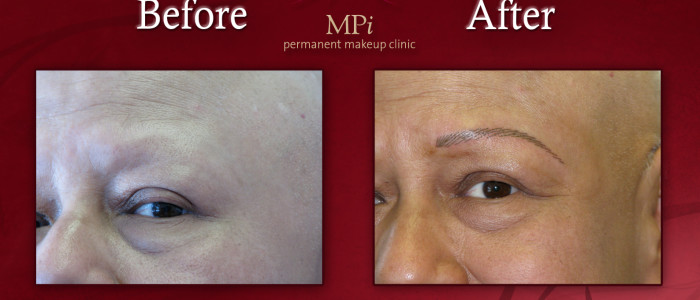 Before and after picture of microblade eyebrows.