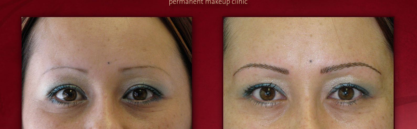 Dallas Fort Worth Mpi Permanent Makeup Microblading Clinic